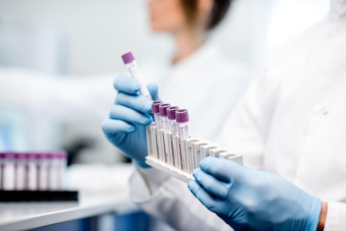 Laboratorio vaccino Coronavirus